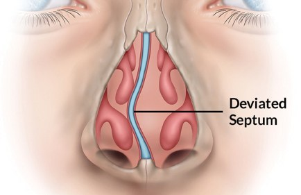 Image of deviated septum from otolaryngologist.