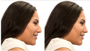 Your specialist for rhinoplasty in Chicago.